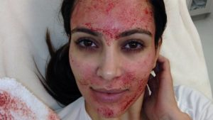Selfie of Kim Kardashian after enduring what is more commonly known as vampire facial UK
